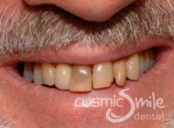 Internal Bleaching – dark root treated central incisor