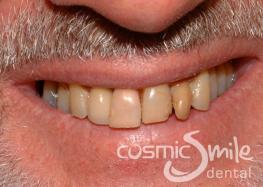 Internal Bleaching – Whitened root treated central incisor