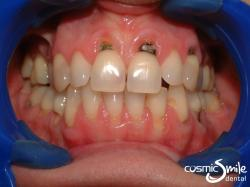Composite – Decay and toothbrush abrasion lesions