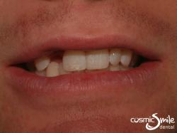 Composite – Diastema closure with composite resin