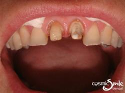 Dental Crown – Front teeth prepared for crowns