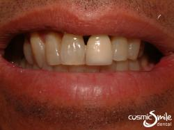 Dental Crowns  – Poorly matched old crown