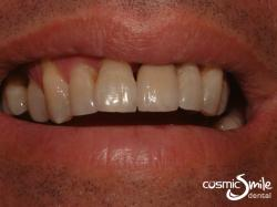 Dental Crowns – New matching aesthetic crown
