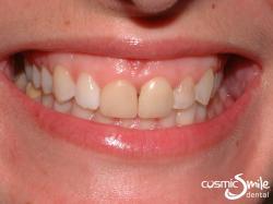 Dental Crowns – Dark front teeth
