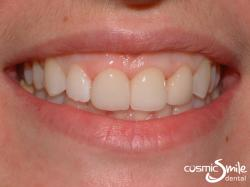Dental Crowns – Porcelain crowns on front teeth