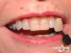 Porcelain veneers – Before – Worn dark front teeth