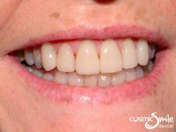 Porcelain veneers – After – Porcelain veneers in place