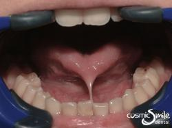 Laser Frenectomy – Tongue tie to the tip of the tongue