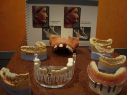 Implant Open Day 3 – Implant models