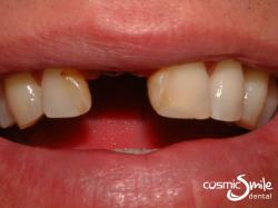 Dental Implant – Right central incisor missing