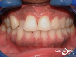 Invisalign – Upper right lateral incisor in crossbite