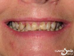 Snap on Smile – Dark, worn, uneven front teeth