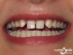 Snap on Smile – Deciduous teeth and diastema