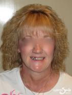 Snap on Smile – Missing teeth – Full face
