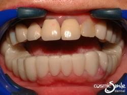 Snap on Smile – Snap on smile in place