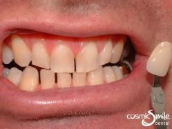 ZOOM teeth whitening – Before – Shade A2