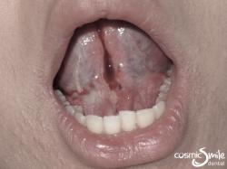 Laser Frenectomy – Tongue lifted up – After laser treatment