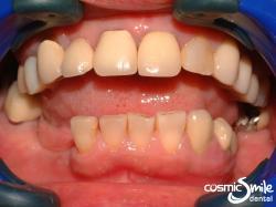 Snap on Smile – Missing lower teeth