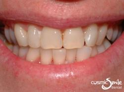 Zoom Whitening – Before