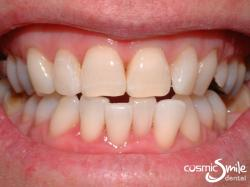 Zoom Whitening – After
