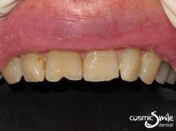 Composite – Chipped front right central incisor