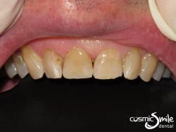 Composite – Repaired front right central incisor