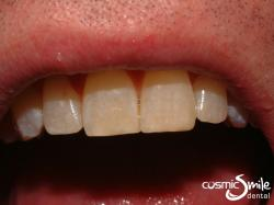 Composite – Central incisors restored with composite resin