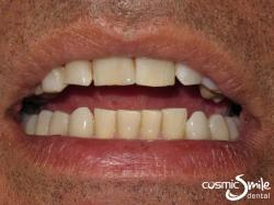 Composite – Restored front tooth