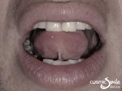 Laser Frenectomy – Tongue up – Before laser tongue-tie treatment