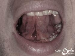 Laser Frenectomy – Tongue up – After laser tongue-tie treatment