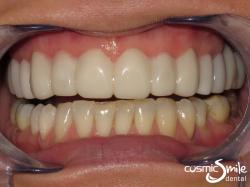 Snap on smile – After – Straight, larger, whiter teeth