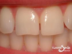 Invisalign – Diastema between teeth