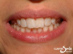 Invisalign – Front teeth crossed over