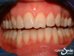Invisalign – Front teeth crossed over – cheeks retracted