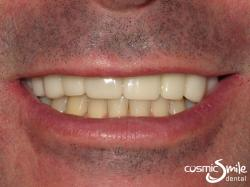 Snap on Smile – Longer, whiter teeth replacing the spaces