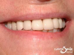 Dental crowns – Natural looking individual porcelain crowns