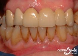 Dental crowns – Ceramic bridge repaired with porcelain veneer