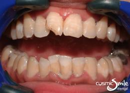 Dental crowns – Cracked right central incisor