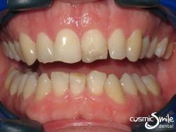 Porcelain veneers – Before – Chipped discoloured front tooth