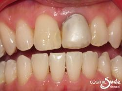 Dental crowns – Darkly coloured left central incisor