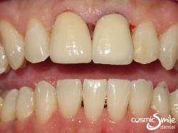 Dental crowns – Whiter porcelain crowns on both central incisors