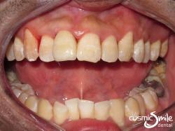 Dental crowns – Natural looking porcelain crown on cracked tooth