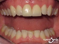 Porcelain veneers – After – White front teeth