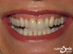 Porcelain veneers – Before – Yellowish front teeth