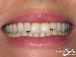Composite – Clear spaces between the upper and lower lateral incisors