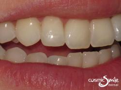 Composite – Composite resin modifications made to create a very natural smile