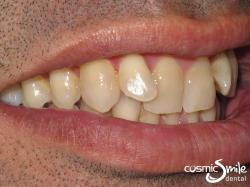 Invisalign – Front teeth retroclined – side view