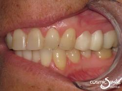 Snap It! – Snap It! (shorter Snap-On Smile) replaces the missing premolar