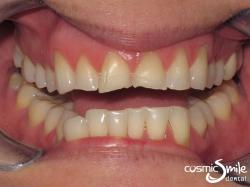 Porcelain veneers – Before – Worn, crooked front teeth