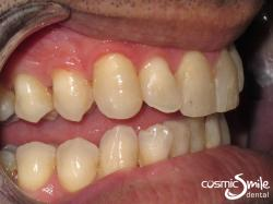 Invisalign – Front teeth straightened – side view